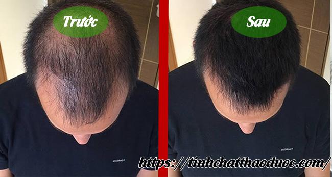 trị rụng tóc bằng tinh dầu bưởi