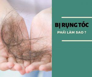 Bị rụng tóc phải làm sao?