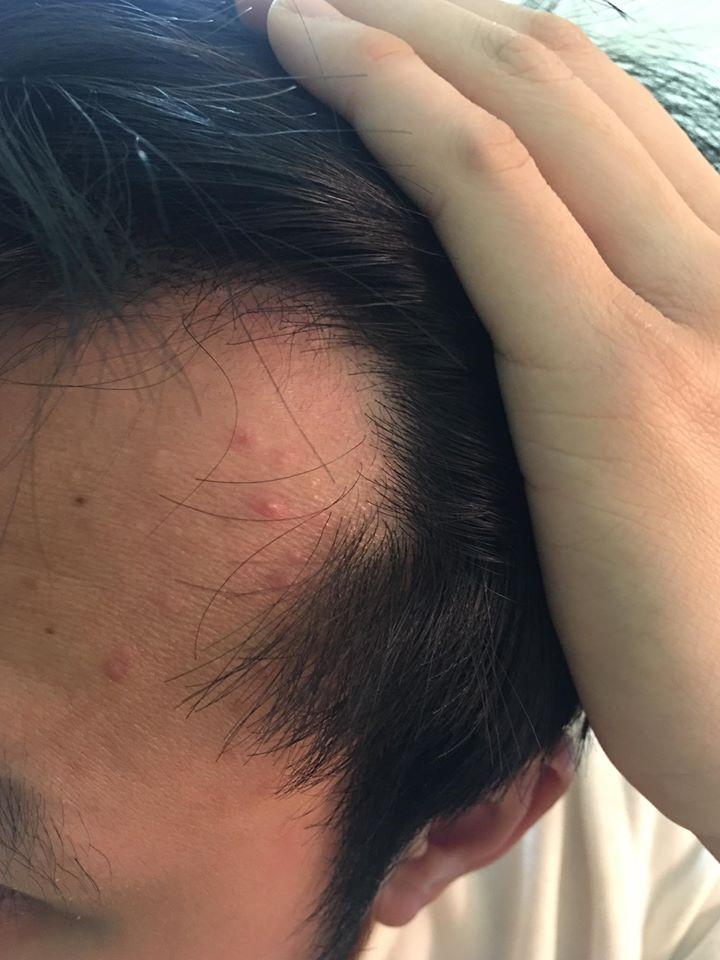 Cách điều trị rụng tóc cho nam giới