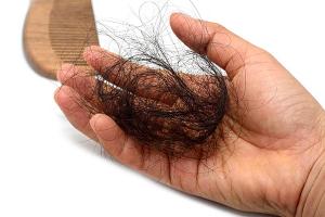 Rụng tóc gây ảnh hưởng nghiêm trọng đến cuộc sống